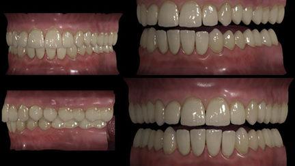 My old generic teeths