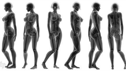 X-Ray Female